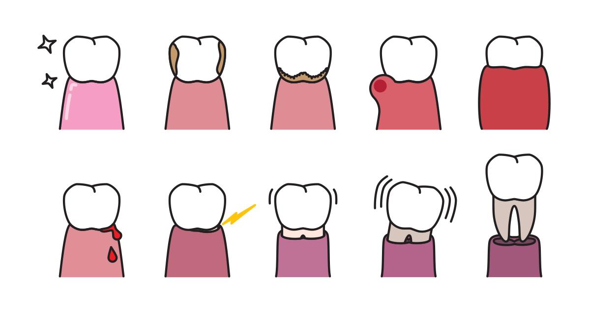 dca-blog_article-37_periodontal-disease_1200x630