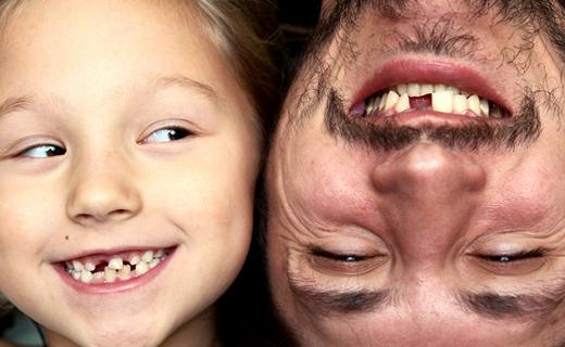 dca-blog_dentures-vs-dental-implants2