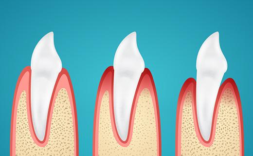 dca-blog_causes-of-gingivitis-and-gum-disease