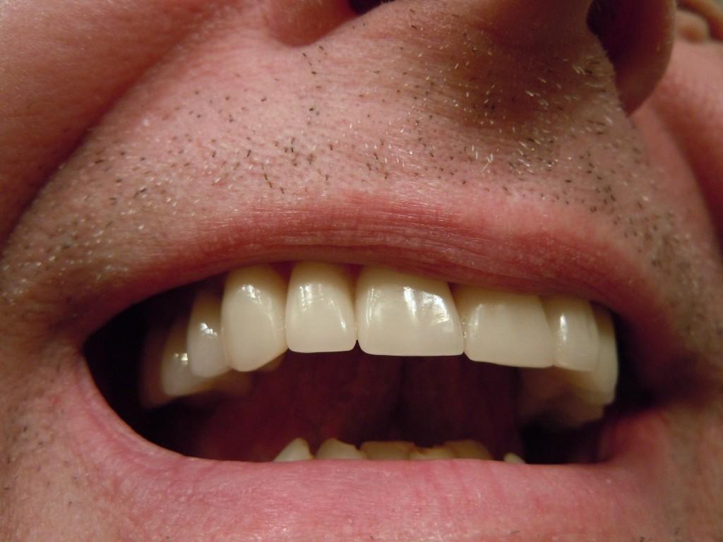 teeth-414489_1920